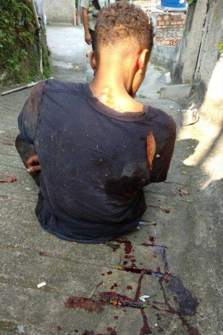 Jovem torturado é resgatado pela Polícia Civil dentro do comunidade em Niterói